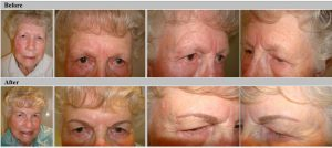 Softstroke Eyebrows Before and After