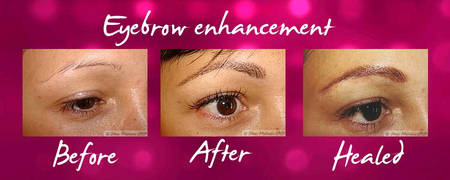Eyebrow Enhancement (c)