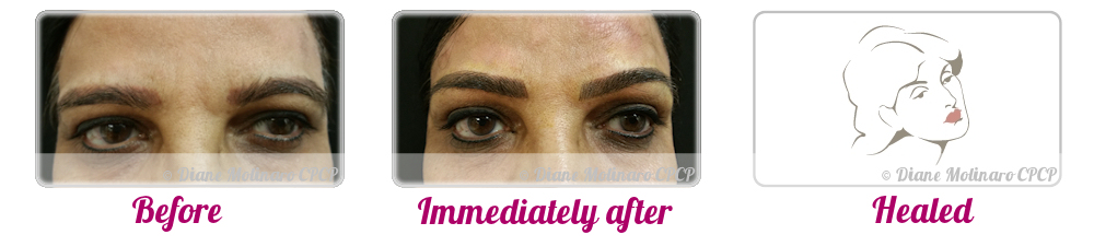 Micro Needling - Eyebrows - Front view