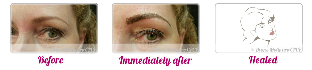 Single Needle – Hair Stroke Brows - Left view