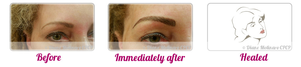 Single Needle – Hair Stroke Brows - Right view