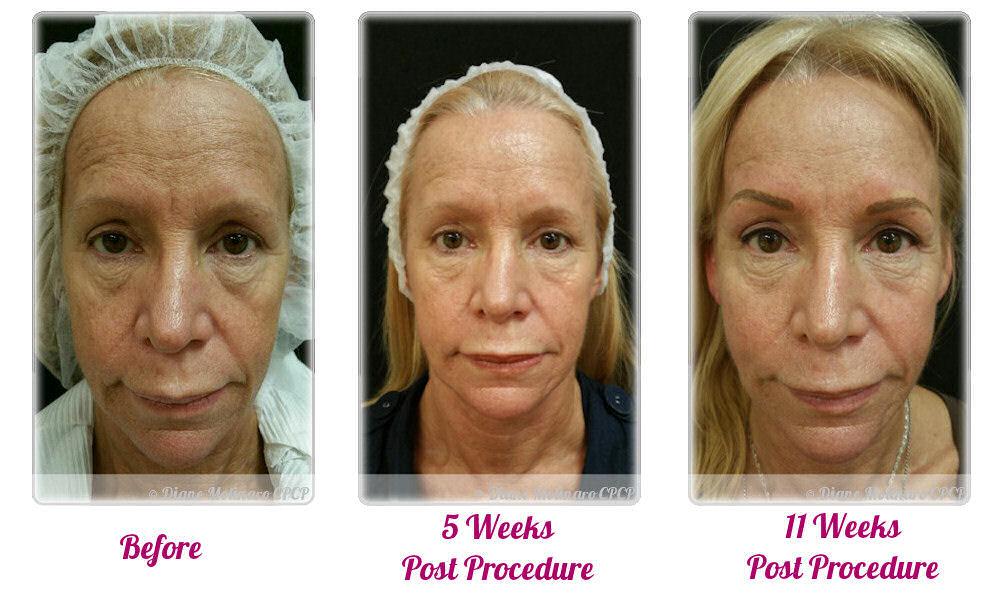 skin needling for wrinkles