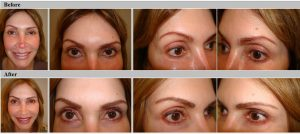 "Full Color Correction Eyebrows and a Refresh procedure on Eyeliner including ""Smudgy eyeliner effect. Note that prior work NOT done at ""Bellafaccia""!"