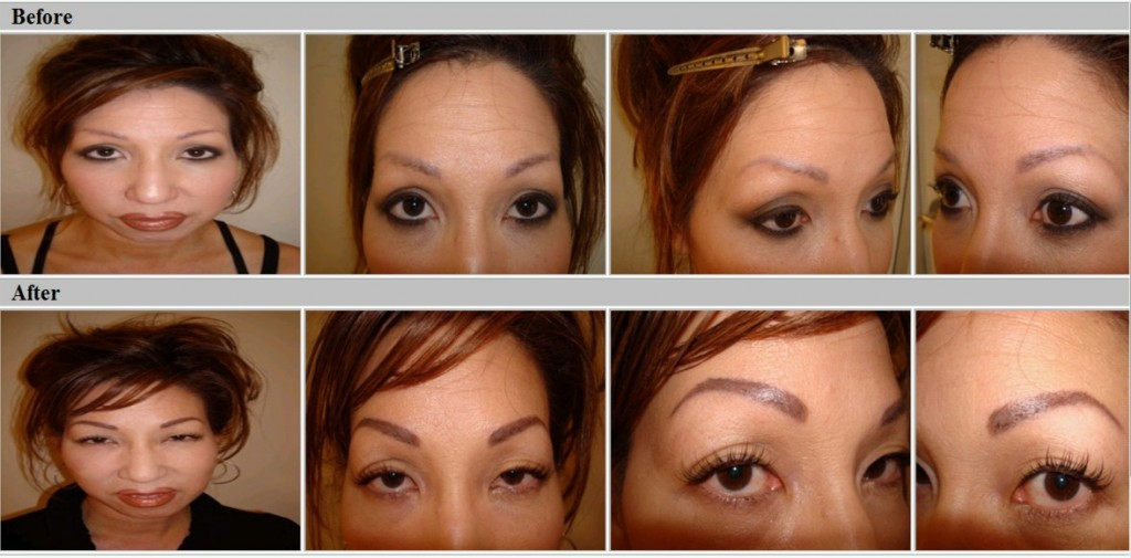 Eyebrow retouch, before and after