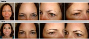 Hairstroke Eyebrows Before and After