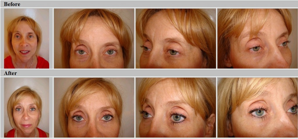 Permanent Eyeliner, before and after