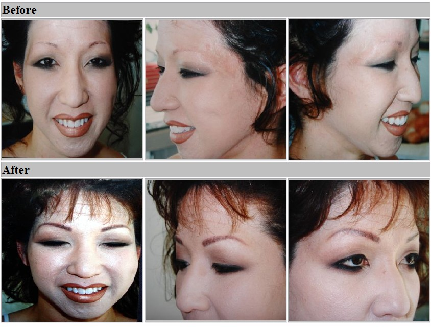 Eyebrows, before and after