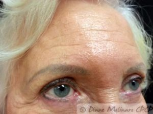 After: brow lighter