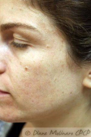 After Acne Microneedling