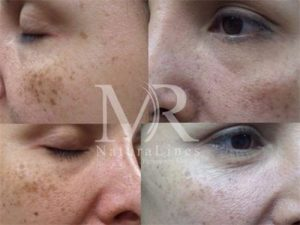 Age sun spots and freckles improved with just 1 treatment
