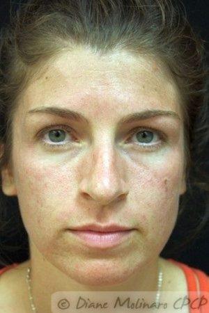 Before Acne Microneedling