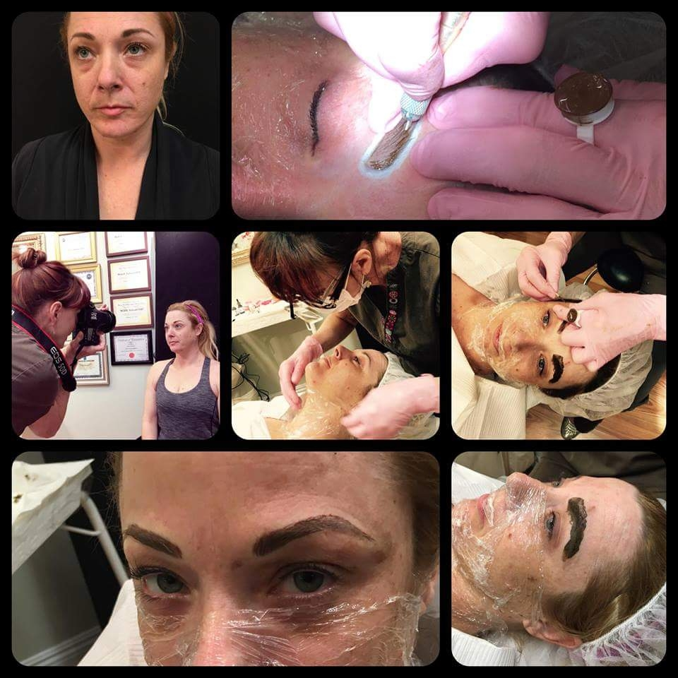 Diane doing Eyebrow Microstroking and the client is numbing up for Microneedling. The forehead was prepared in the same manner after brow procedure was completed