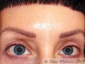 Before : dark brows
