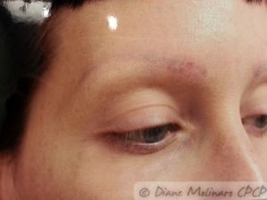 Right brow at 6 weeks after the final removal session