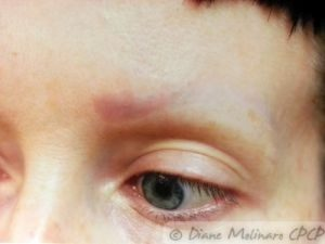After brow removal, left