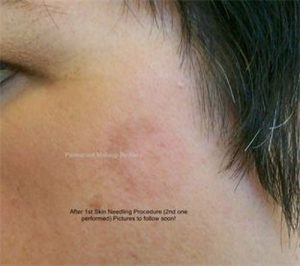 after 3 treatments microneedling