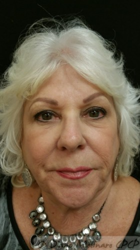 after microneedling facial