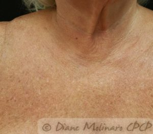 chest Healed after 3rd Micro-Needling session