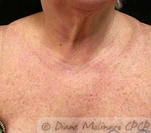 chest after microneedling