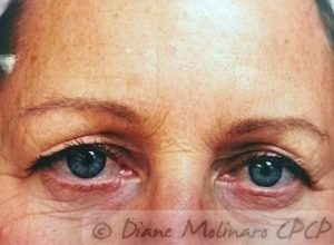 forehead after micro-needling