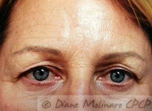 forehead before micro-needling
