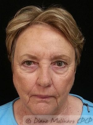 full face after micro-needling