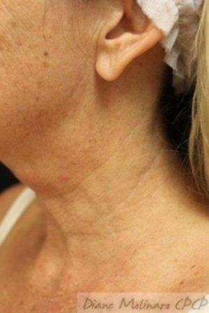 left side Before micro-needling
