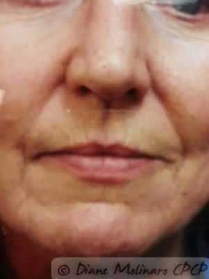 Peri-oral, 3 months after micro-needling