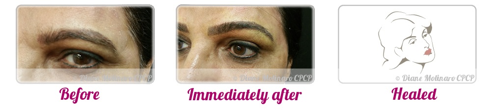 Micro Needling - Eyebrows - Right view