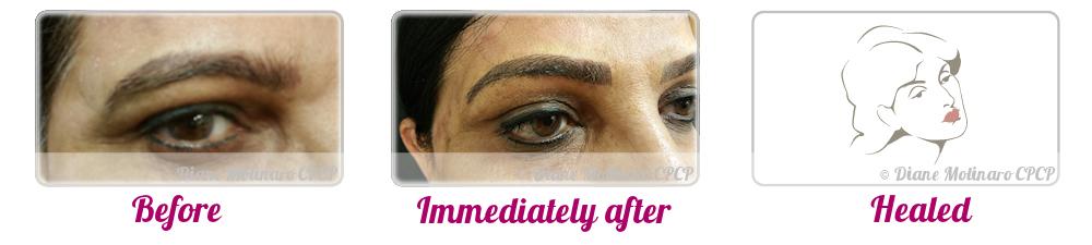 Micro Needling - Eyebrows - Left view