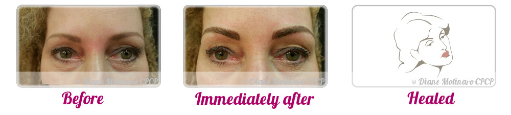 Single Needle – Hair Stroke Brows - Front View