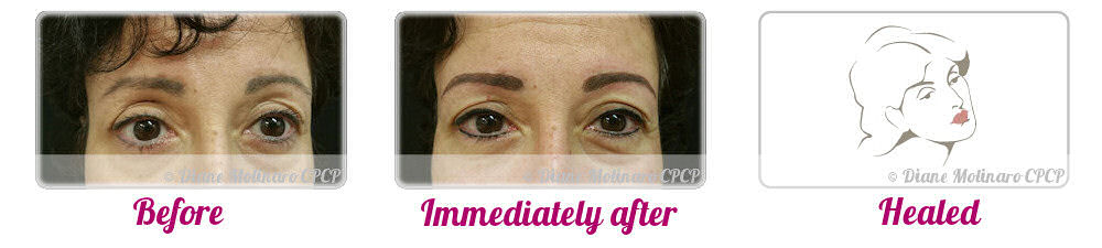 Micro Stroke – Brows - Front View