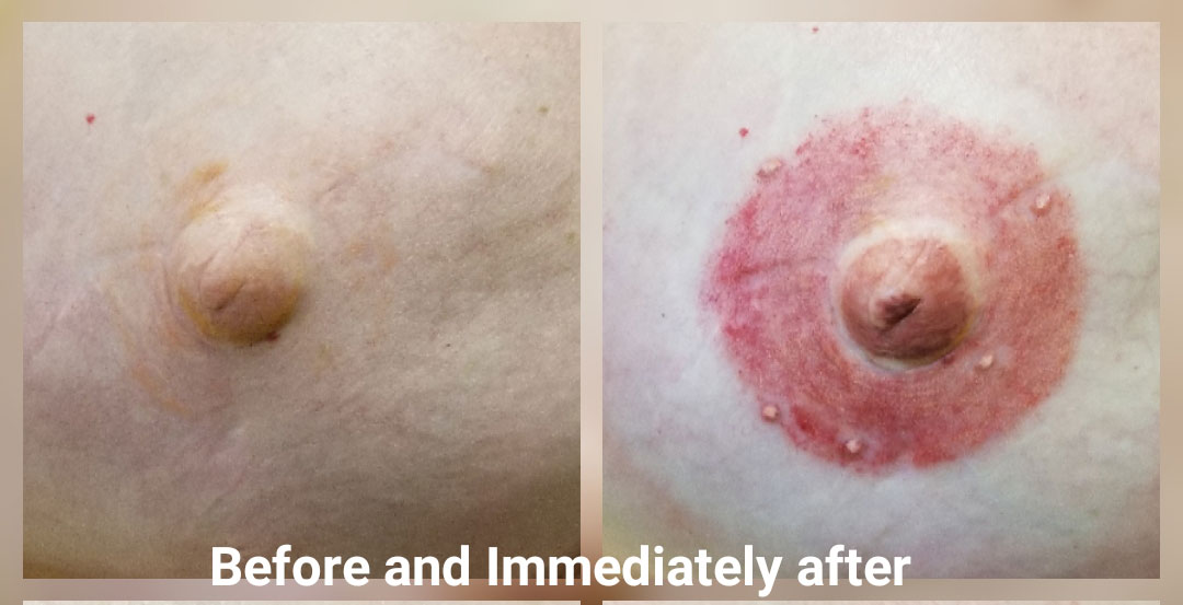 Areola enhancement before and after