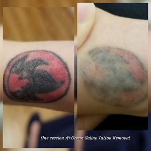 Only one session tatoo removal