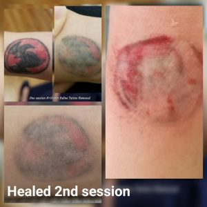 tatoo removal after 2nd session