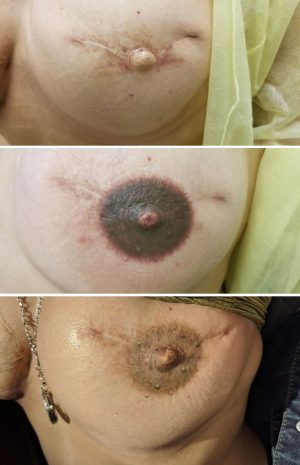 right areola pigmentation before, immediately after, and healed